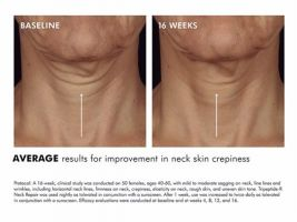 Skinceuticals Tripeptide -R Neck Repair 50mL